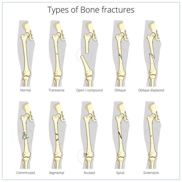 leziune de menisc în articulația genunchiului gonartroza artroza tratamentului articulației genunchiului