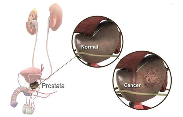 Ce sunt metastazele osoase în cancerul de prostată?