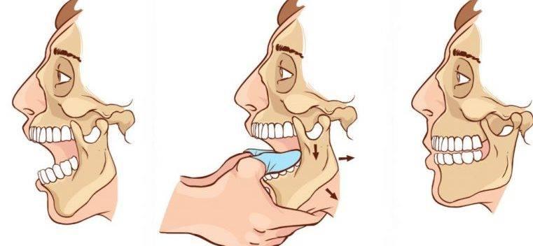 Dureri de mandibulă