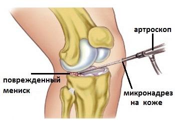 deteriorarea meniscului medial al genunchiului 2 grade