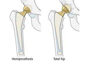 tratamentul artrozei deformante articulare
