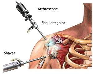 Cum se tratează artroza umărului de gradul II