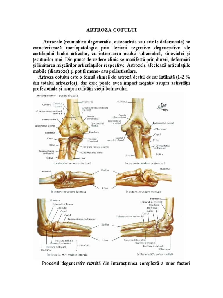stadiul inițial al artrozei cotului)