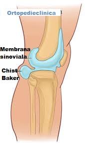 tratamentul artrozei genunchiului cu un chist becker