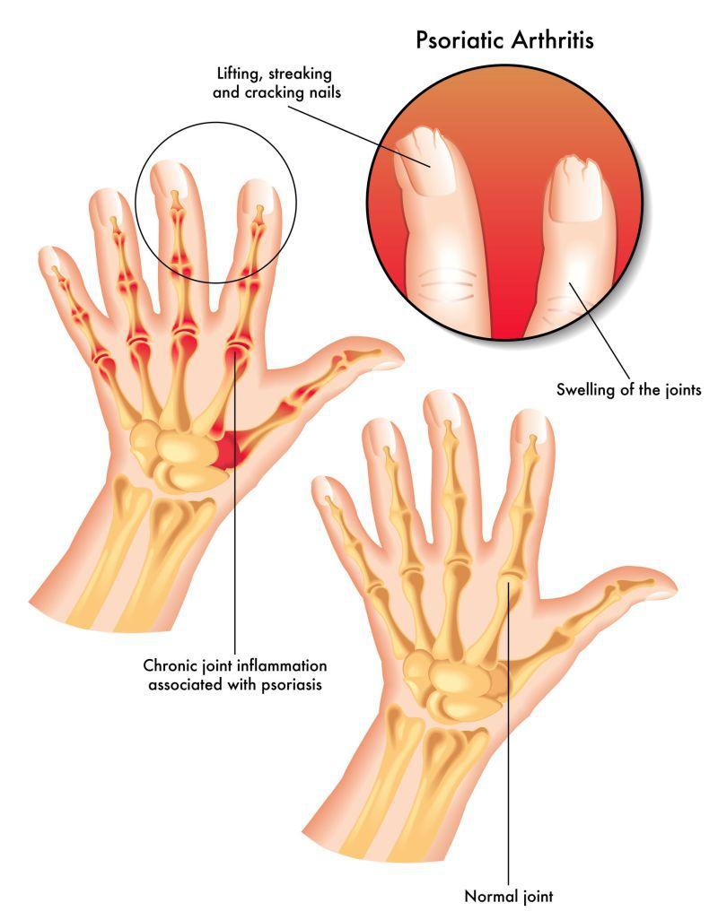 psoriazis artrita degetelor primele simptome