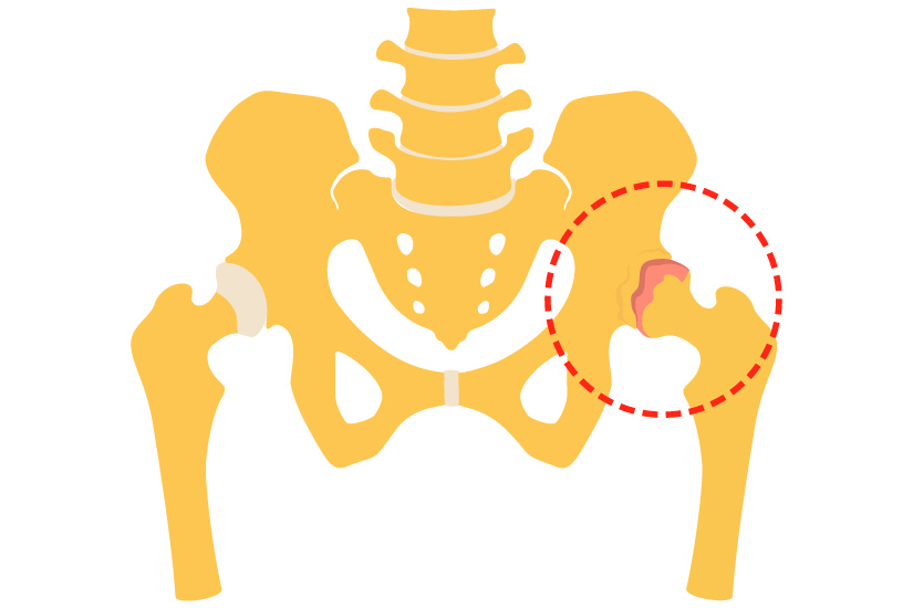 Metode moderne de tratare a artrozei deformante
