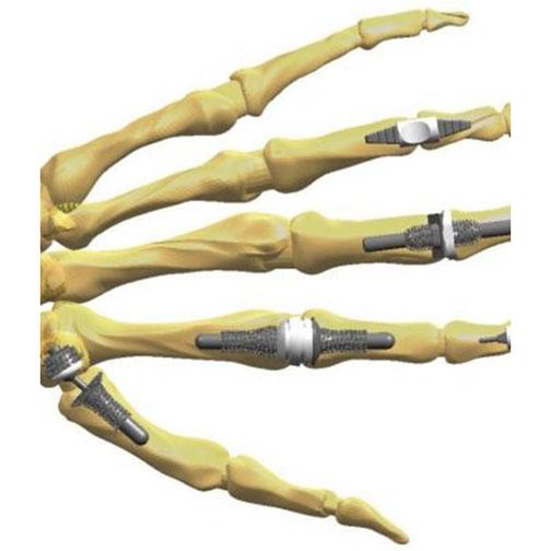 pregătire pentru oase și articulații crema pentru recenzii de osteochondroza