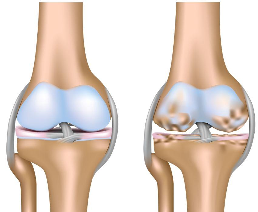 edemul măduvei trabeculare a articulației genunchiului
