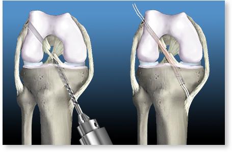 tratarea leziunilor ligamentului cruciat al genunchiului)