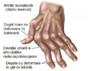 artrita preparatelor mâinilor)