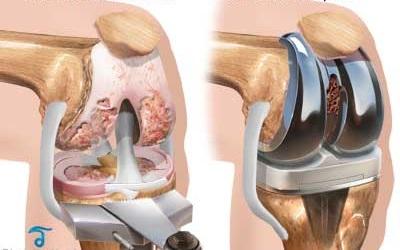 artroplastia genunchiului dureri severe