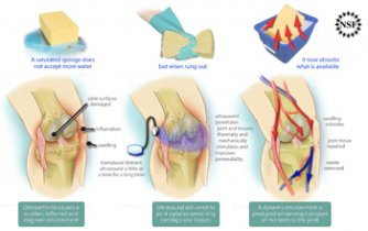 aparat pentru tratarea durerilor articulare