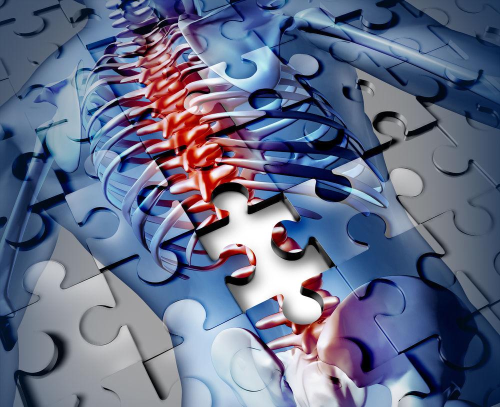 boli specifice articulațiilor