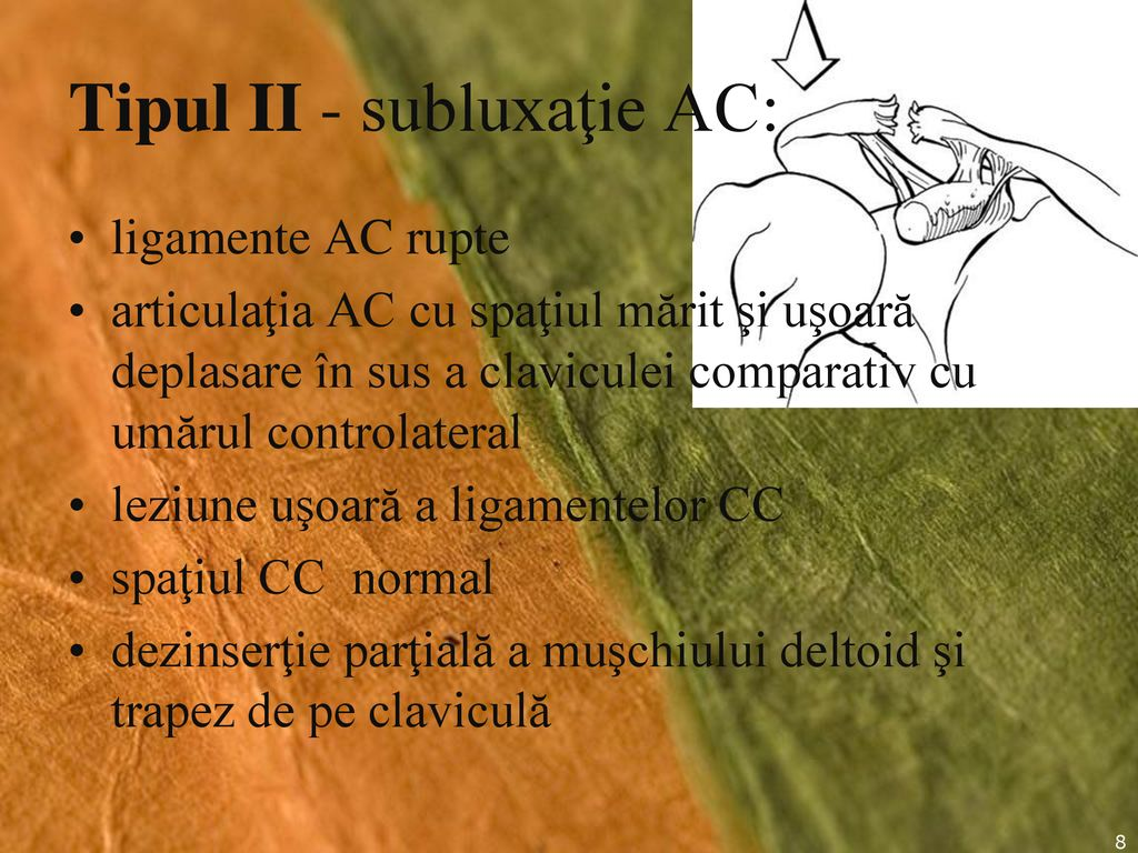 deteriorarea parțială a articulației umărului)