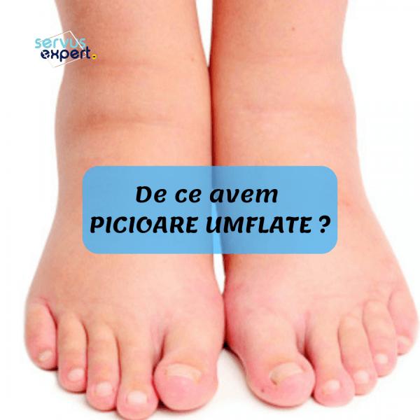 umflarea tratamentului articulației piciorului)