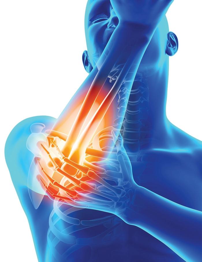 boli inflamatorii ale oaselor și articulațiilor)