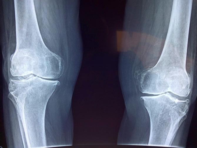 semne radiografice ale artrozei genunchiului