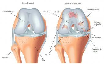 genunchiul este un fel de articulație