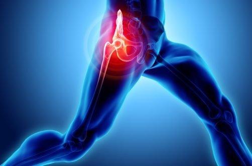 sarea în tratamentul artrozei din boala articulațiilor mâinilor