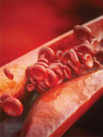Boala coronariană – Cardiologie Sibiu PromedIQ