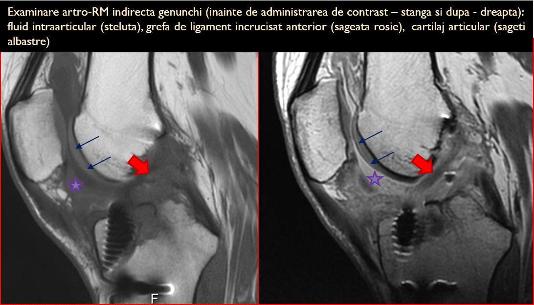 inflamatie urologica articulara