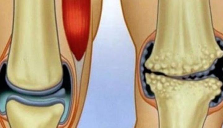 leac pentru inflamații și dureri articulare cum să tratezi durerea în articulația mâinii