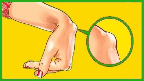 durere străpungătoare în articulația șoldului