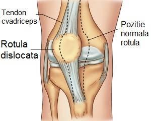 luxația simptomelor și tratamentul genunchiului)