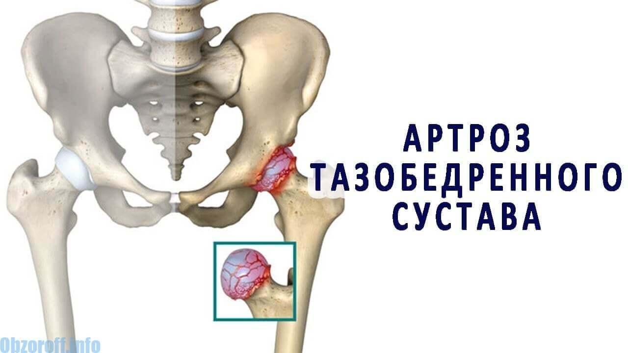 metode de tratament pentru artroza articulației șoldului