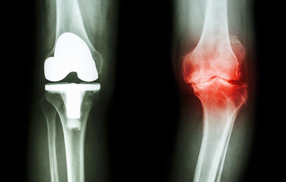metode de tratament pentru artroza genunchiului
