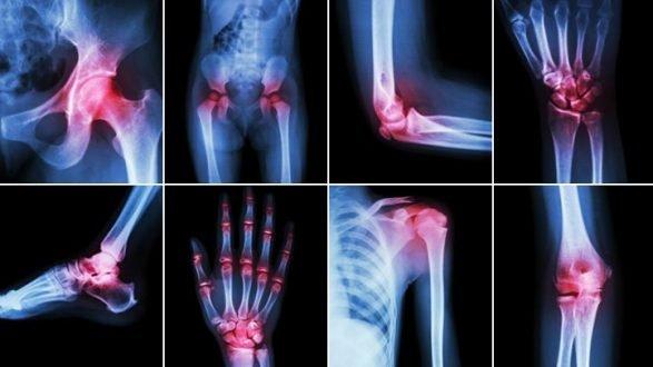 îngrijire medicală pentru leziuni ale oaselor și articulațiilor