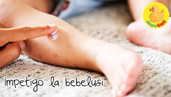 durere acută în articulațiile piciorului