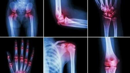 Raze infraroșii pentru tratamentul articulațiilor