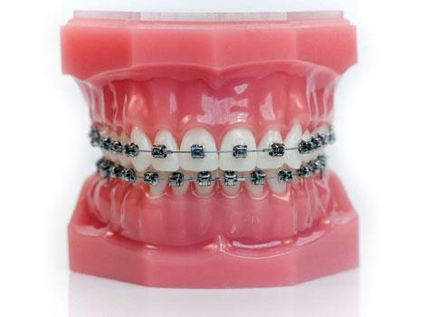 Toate informatiile despre aparatul dentar ortodontic!