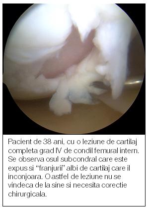 regenerarea cartilajului articulației șoldului)