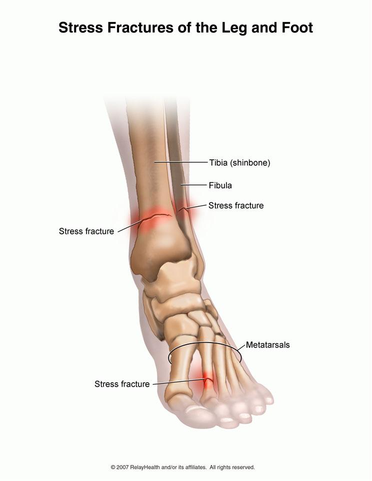 artroza articulației genunchiului provoacă tratament pentru bolile articulațiilor prescrise