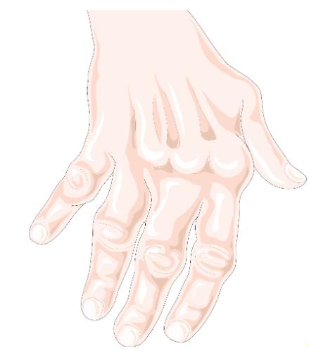 simptom de inflamație articulară
