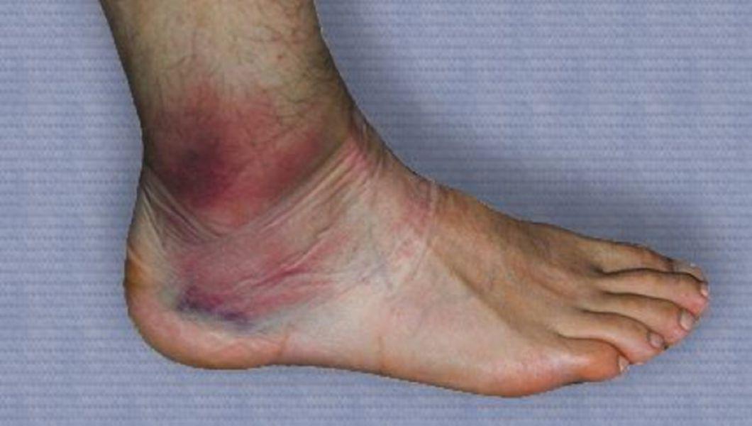 simptomele tratamentului de entorsă a gleznei