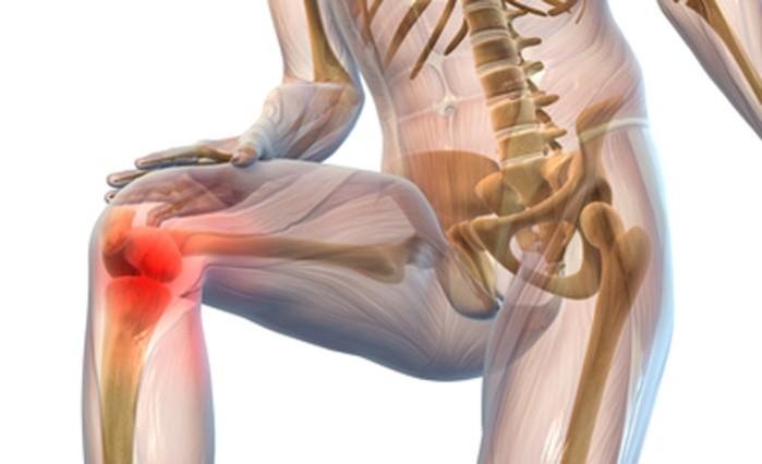 simulatoare pentru tratamentul artrozei în casă stadiile artrozei genunchiului