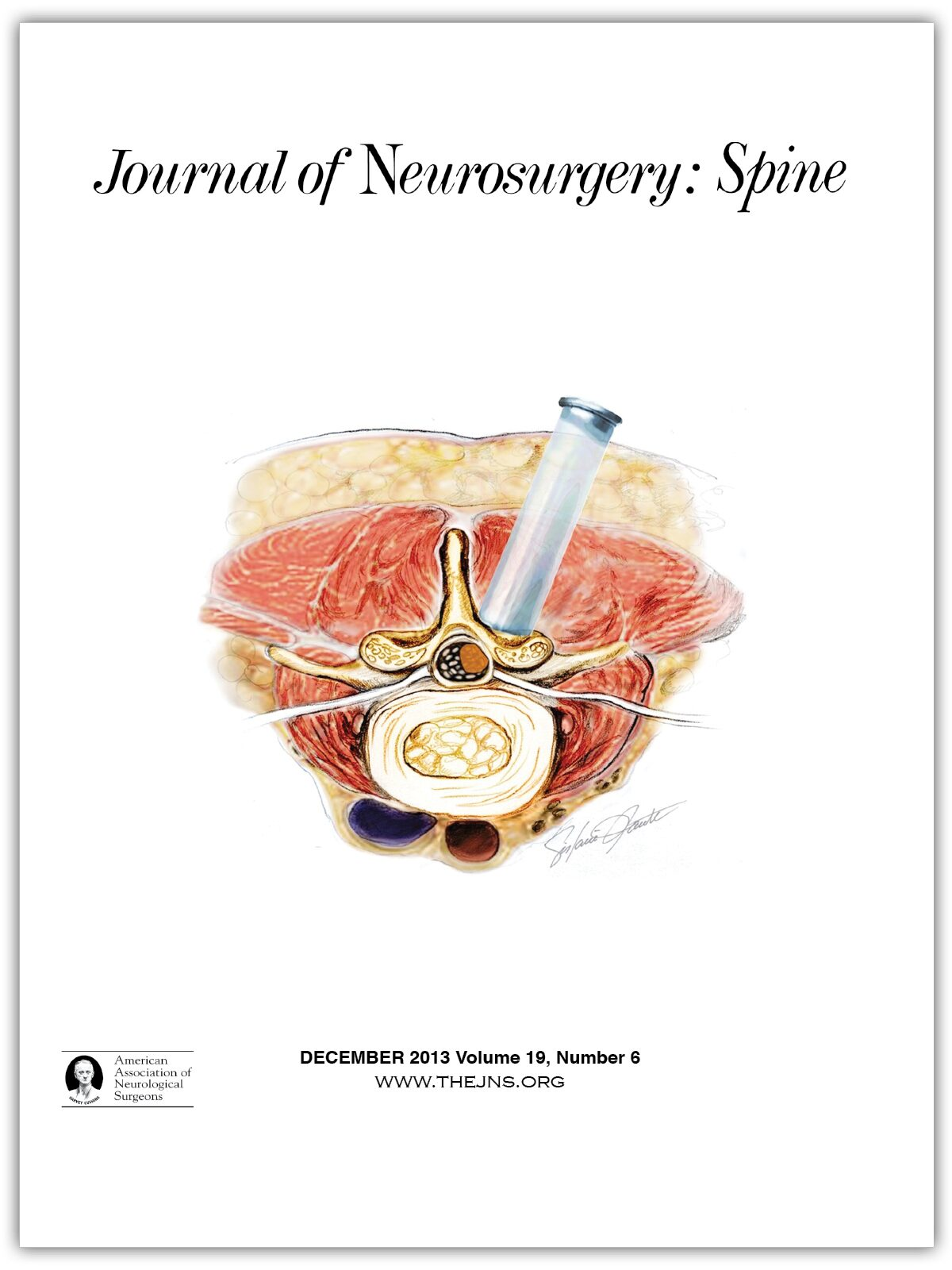 artroza posttraumatică a simptomelor și tratamentului genunchiului dureri postpartum la nivelul articulațiilor genunchiului