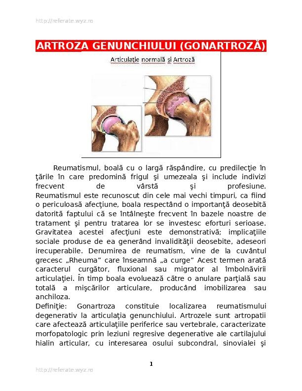 Artroza genunchiului tabloul clinic comun