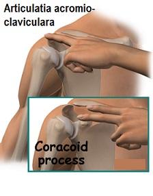 timp de recuperare a rupturii articulației acromioclaviculare)
