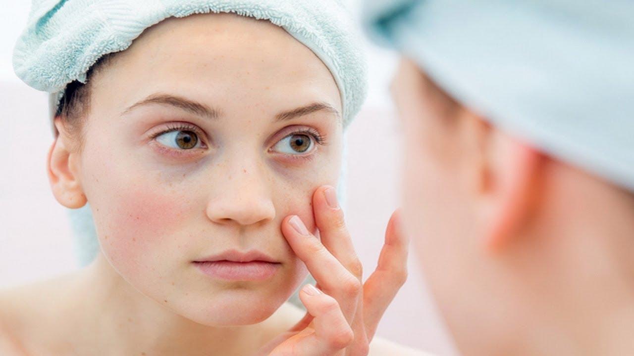tratament articular pentru lupus