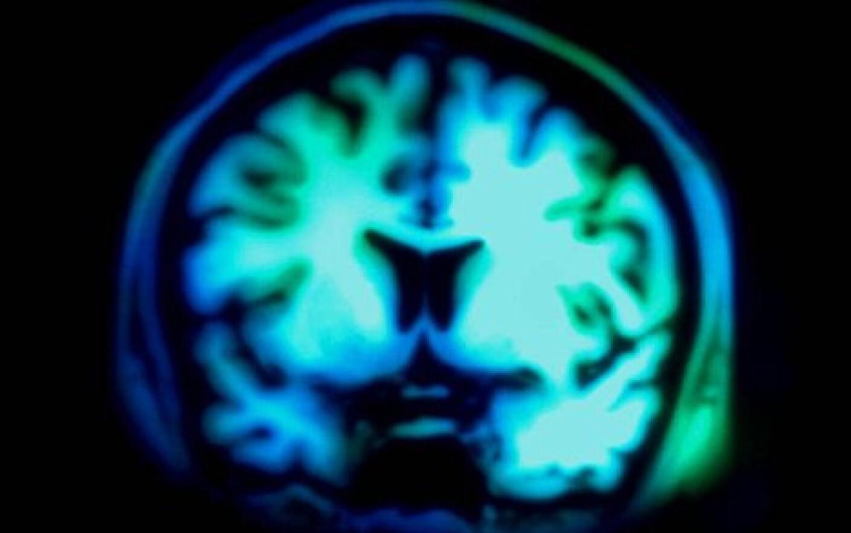 terapia cu electrosocuri | Medlife