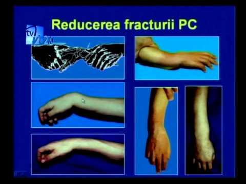 tratament la încheietura mâinii după fractură