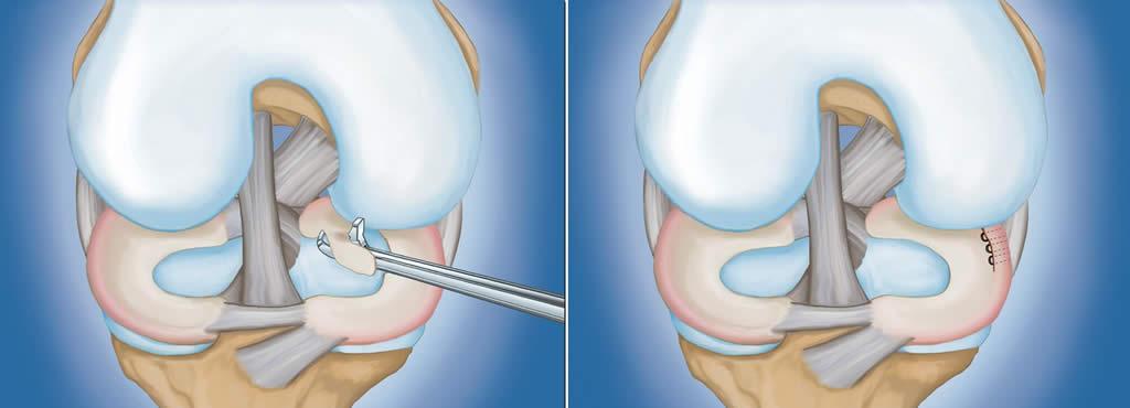 tratament ortoplasmatic al meniscului genunchiului