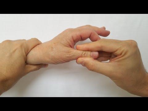 tratamentul articulației osteoartrozei