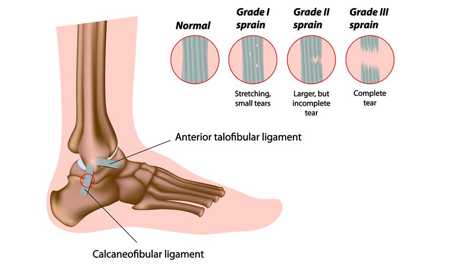Tratamentul artritei gleznei)