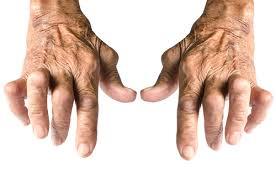 tratamentul artrozei și poliartritei boli articulare la rațe