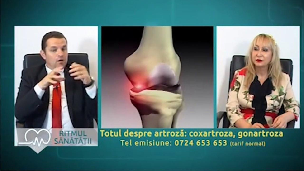 tratamentul artrozei în matsesta)